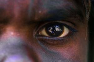 Cataract blitzes not long-term solution
