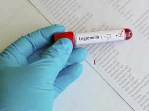 Positive legionella test at Qld hospital