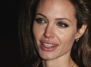 Angelina effect leads to more mastectomies