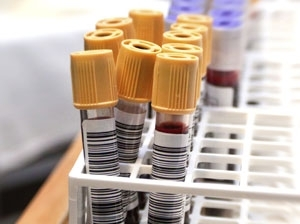 Plea for pregnancy care blood tests