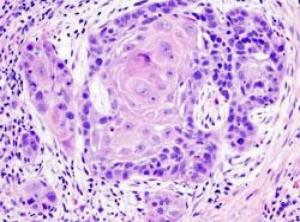 Combined cancer treatment hailed