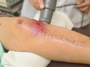 Doubts on long-term knee op benefit