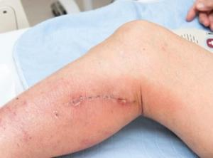 wounds and the normal healing process healthtimes