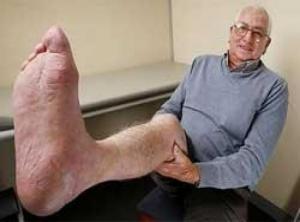 3D printer saves cancer patient's leg