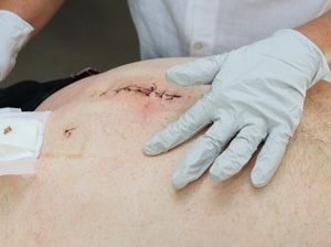 Surgical Wounds � Part 3