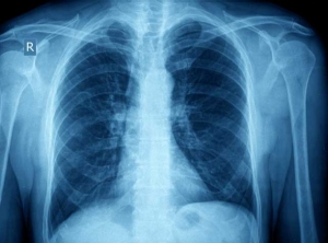 More medical checks after TB scare