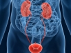 Bladder cancer hits women worse