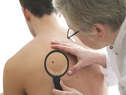Look out for red melanoma, not just moles