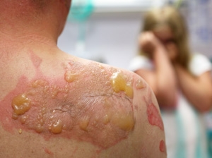 Synthetic skin to help wounds heal faster