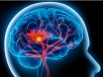 Fast action needed for suspected stroke